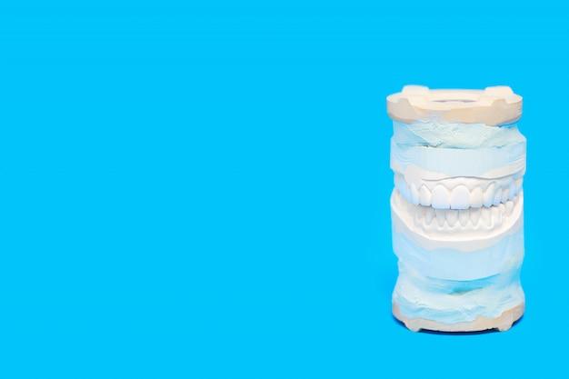 Jaw cast dans un dispositif médical spécial sur bleu Photo Premium