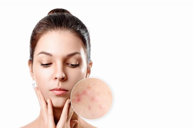 Jeune femme à la peau d'acné dans le cercle de zoom. jeune fille, portrait de la beauté. fermer. Photo Premium