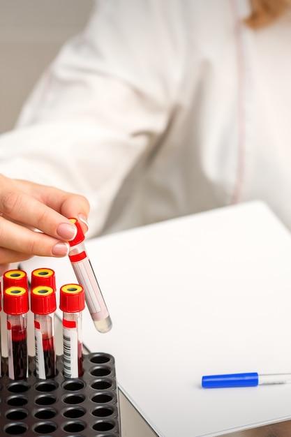 La Main Du Technicien De Laboratoire Ou De L'infirmière Prend Le Tube à Essai De Sang Vide Du Rack Dans Le Laboratoire De Recherche Photo Premium