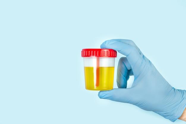Main Avec Gant Chirurgical Tenant Un Gobelet Médical Jetable Pour L'analyse D'urine Photo Premium