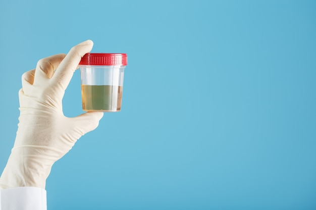 La Main Gantée Du Médecin Tient Un Récipient Transparent Avec Un Test D'urine Photo Premium