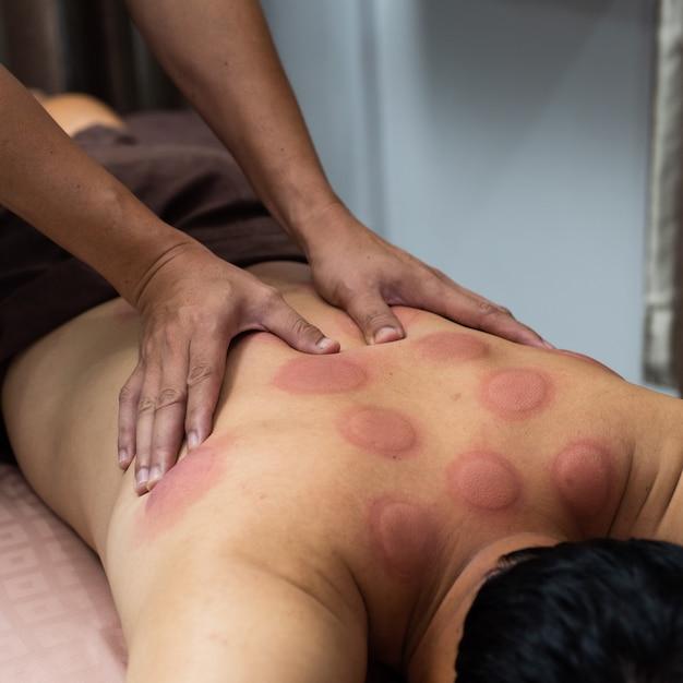 Main d'un médecin qui traite le massage du dos du mâle avec des traces de sang massées après avoir suivi un traitement d'aspiration chinoise Photo Premium