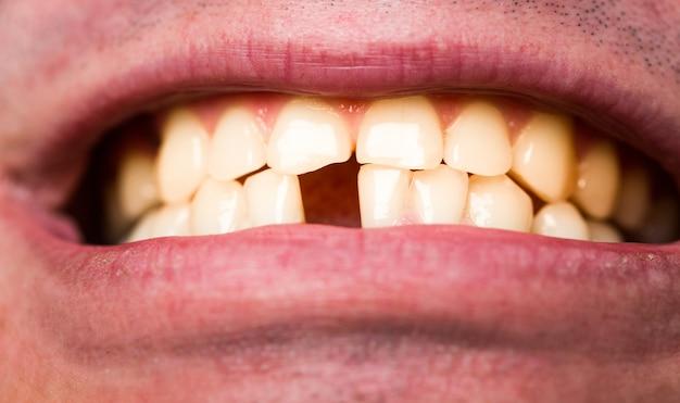 Mauvaises Dents Jaunes. Homme Sans Dent De Devant. Pas De Dents. Photo Premium