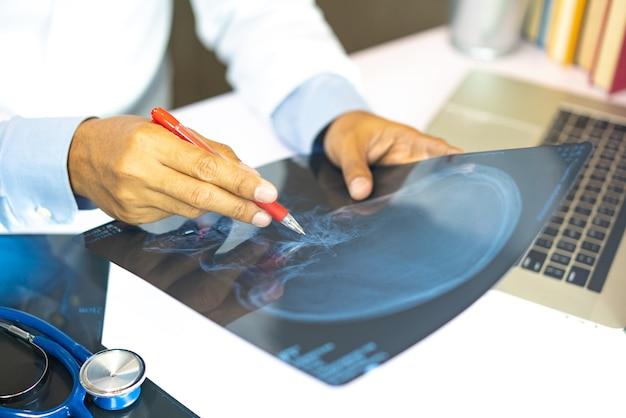 Médecin regardant les résultats de la radiographie Photo Premium