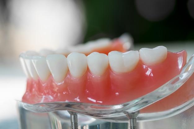Modèle De Dents Montrant Un Modèle De Pont De Couronne D'implant / Démonstration Dentaire Modèle D'étude Des Dents. Photo Premium