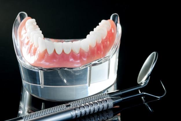Modèle De Dents Montrant Un Modèle De Pont De Couronne Implantaire / Modèle D'enseignement De L'étude Des Dents De Démonstration Dentaire. Photo Premium
