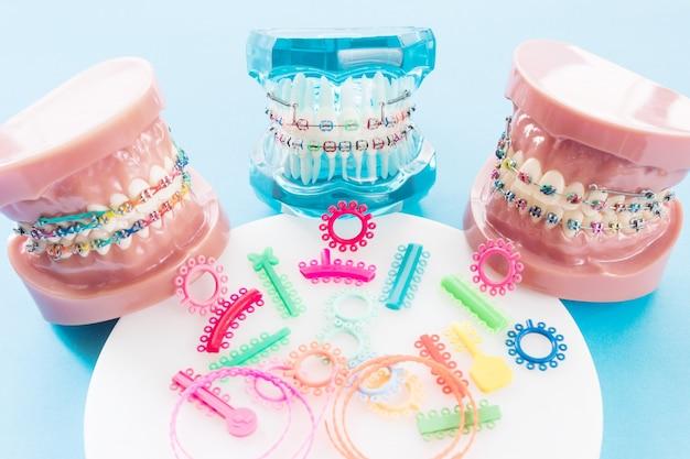 Modèle orthodontique et outil de dentiste - modèle de dents de démonstration des variations de la parenthèse ou du corset orthodontique Photo Premium