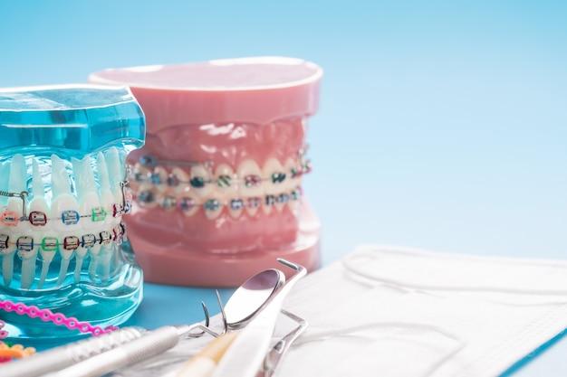 Modèle Orthodontique Et Outil De Dentiste - Modèle De Dents De Démonstration De Variétés De Brackets Ou Orthèses Orthodontiques Photo Premium