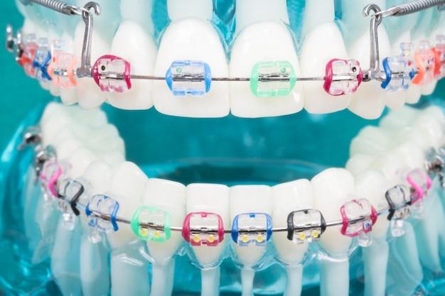 Modèle orthodontique et outil de dentiste - modèle de dents de démonstration de variétés d'orthodontie Photo Premium