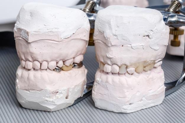Moule à Dents De Prothèse Dentaire Gris, Modèle De Gencives Humaines En Argile Photo Premium