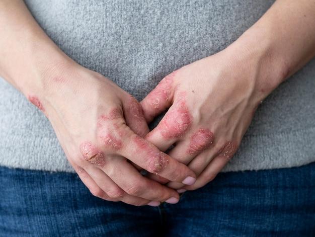 Peau fissurée et squameuse sur les mains. problèmes dermatologiques du psoriasis. Photo Premium