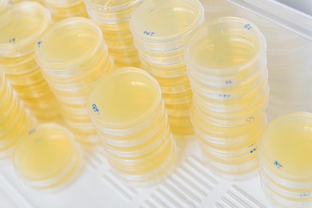 Pile de boîtes de pétri avec des cultures dans les algues agar. Photo Premium