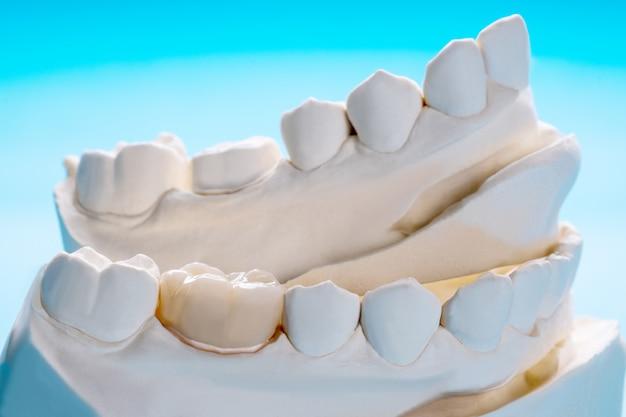 Plan rapproché / prosthodontie ou équipement prothétique / couronne et pont et restauration rapide de modèle. Photo Premium
