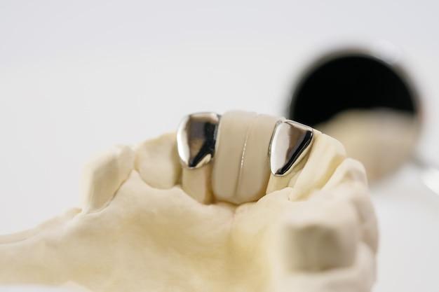 Pont Maryland Closeup / Dental / équipements De Couronne Et De Pont Et Restauration Rapide De Modèle. Photo Premium