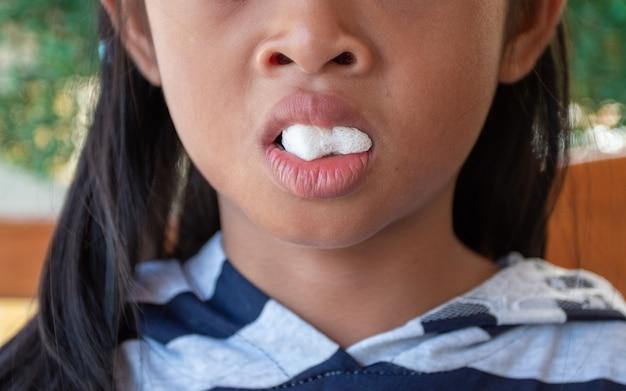 Post-dentaire fille à la clinique dentaire avec de la gaze à la bouche Photo Premium