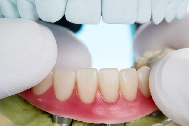 Prothèse De Gros Plan / Implants Dentaires Soutenue Photo Premium