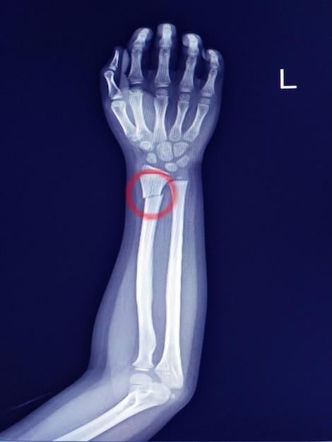 Radiographie de l'avant-bras aux rayons x. fracture de la tige distale du radius. sclérose légère à la ligne de fracture. Photo Premium
