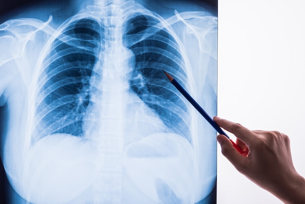 Radiographie en noir et blanc image d'un thorax humain pour un diagnostic médical Photo Premium