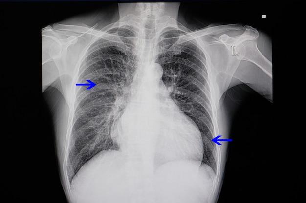 Radiographie pulmonaire d'un patient souffrant d'insuffisance cardiaque Photo Premium