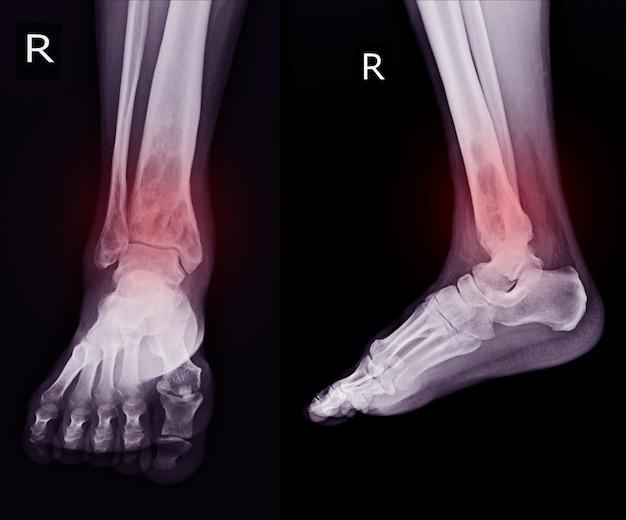 Radiographie: rt.ankle découvrant une lésion osterolytique intramédullaire du tibia distal droit Photo Premium