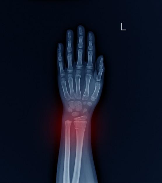 Rayon de fracture aux rayons x au poignet gauche. Photo Premium