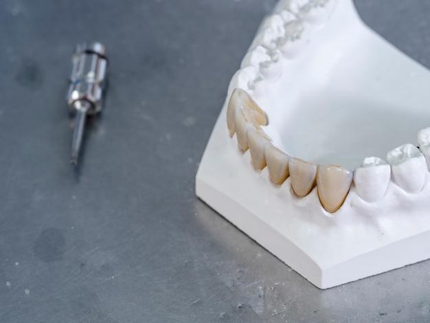 Restaurations monolithiques en zircone. dents dans un plâtre blanc. Photo Premium