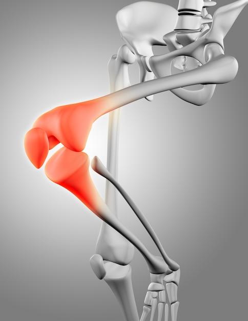 Squelette avec douleur au genou Photo gratuit