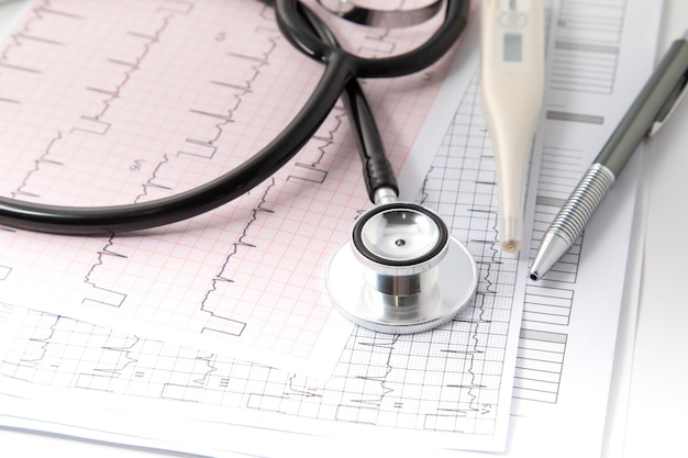 Stéthoscope Bleu Sur Papier Graphique électrocardiogramme (ecg). Analyse De Diagramme Cardiaque Ecg Isoler Sur Blanc. Assurance Santé Et Formation Médicale Photo Premium