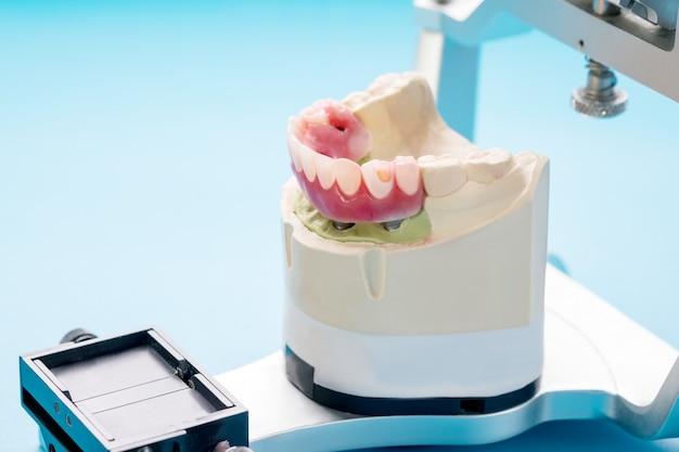 Le Travail D'implant Dentaire Est Terminé Et Prêt à L'emploi / Pilier Provisoire D'implant Dentaire Photo Premium