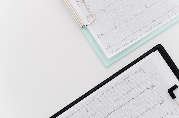 Vue aérienne du rapport médical de l'ecg sur le presse-papiers bleu et noir sur fond blanc Photo gratuit