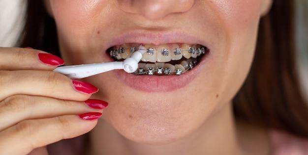 Sistema brasket in bocca sorridente, denti foto macro, labbra close-up, colpo macro. spazzolatura del sistema di staffe Foto Premium