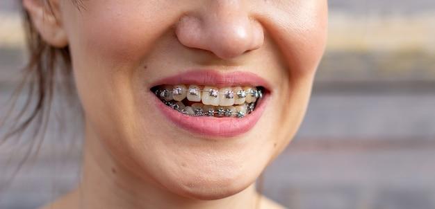 Sistema brasket in bocca sorridente, denti foto macro, labbra close-up, colpo macro. Foto Premium