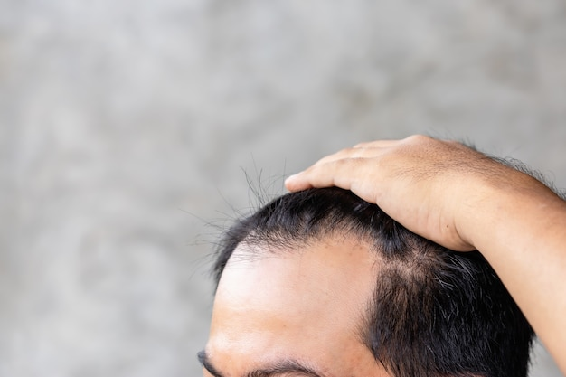 Chiuda sull'uomo che tocca la sua testa per mostrare la testa calva o il problema glabro. Foto Premium