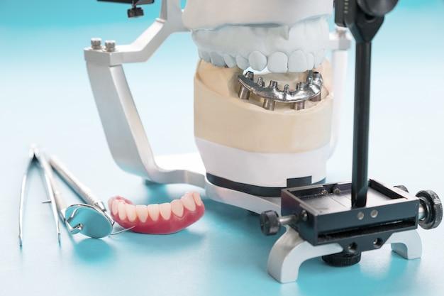 Il lavoro sull'impianto dentale è completato e pronto per l'uso / moncone provvisorio per impianto dentale Foto Premium