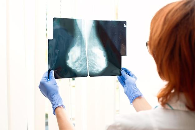 Medico che esamina i raggi x delle ghiandole mammarie Foto Premium