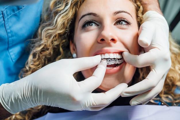 Medico che mette un allineatore dentale chiaro per la donna paziente Foto Premium
