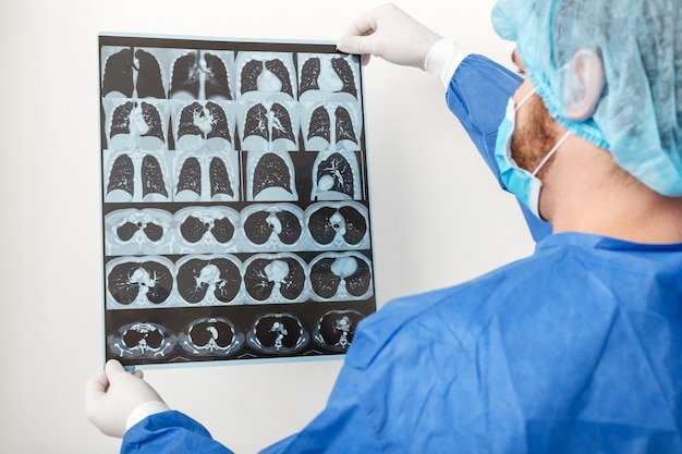 Medico chirurgo in uniforme protettiva controlla la radiografia del polmone alla risonanza magnetica. coronavirus covid 19, polmonite, tubercolosi, cancro ai polmoni, malattie respiratorie. concetto di medicina e assistenza sanitaria Foto Premium