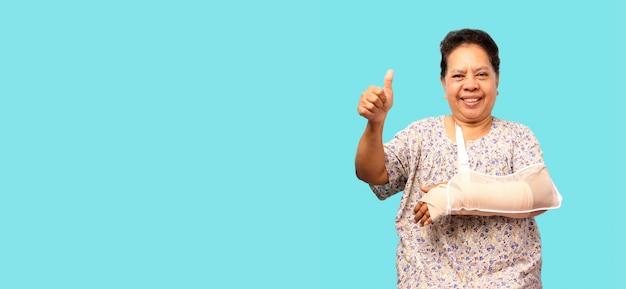 Colata del braccio rotto donna asiatica anziana che mostra due pollici su sopra la parete blu Foto Premium