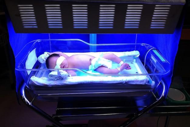 Neonata con ittero neonatale, iperbilirubinemia alta di bilirubina, sul letto Foto Premium