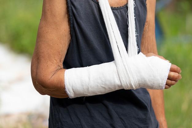 Donna anziana con il braccio rotto con un'imbracatura, mano alta vicina con la fasciatura e gesso come concetto di lesione corporea. Foto Premium