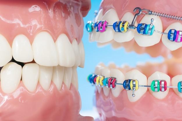 Modello ortodontico e strumento dentista - modello di denti dimostrativo di varietà di attacchi o tutori ortodontici Foto Premium