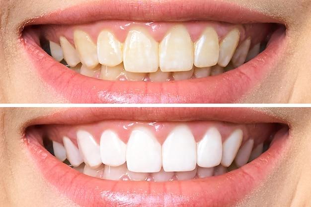Denti prima e dopo lo sbiancamento Foto Premium