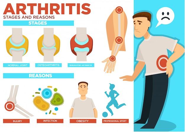 Stadi di artrite e ragioni del poster della malattia Vettore Premium