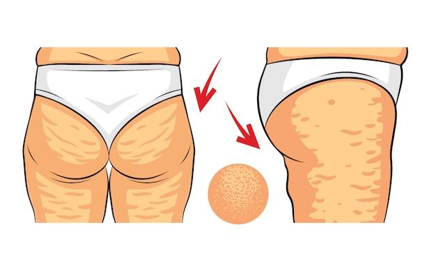 Illustrazione vettoriale di colore del problema della cellulite. fianchi femmina vista posteriore e vista laterale. depositi di grasso sui glutei femminili. anca con vista macro buccia d'arancia Vettore Premium