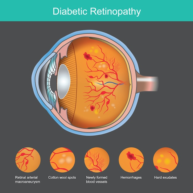 Illustrazione di retinopatia diabetica Vettore Premium