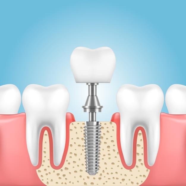 Mascella umana con denti sani e protesi con corona dell'impianto Vettore Premium