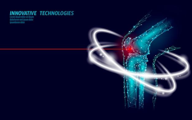 Illustrazione di vettore del modello 3d dell'articolazione del ginocchio umano. futuro del design low poly Vettore Premium