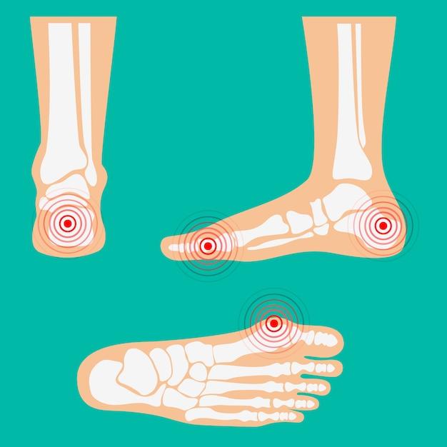 Zone di dolore alla gamba umana. Vettore Premium