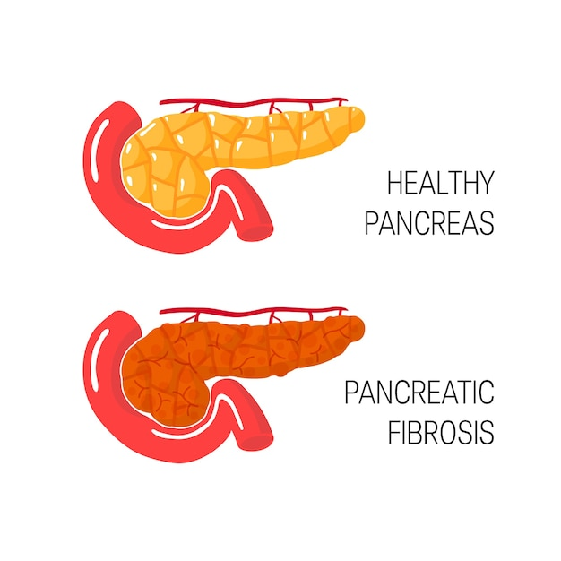 Concetto di fibrosi pancreatica in stile cartone animato. Vettore Premium