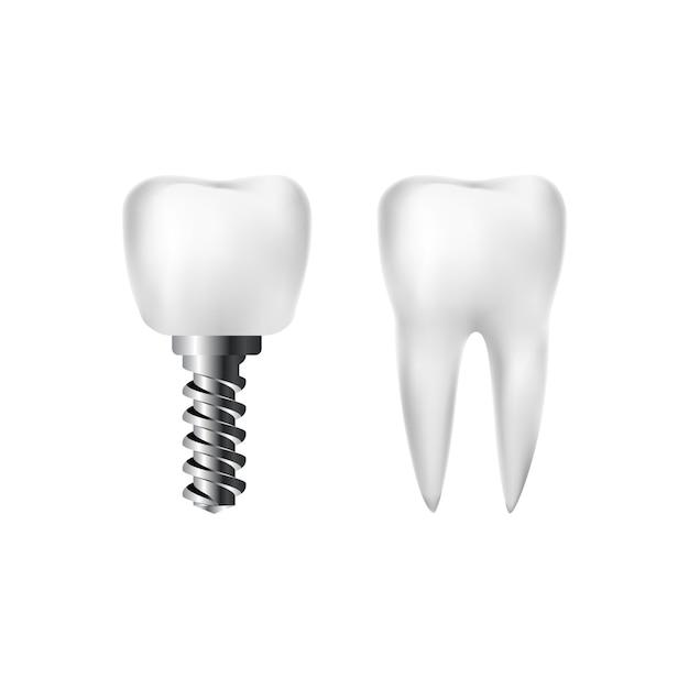 Dente bianco sano realistico e impianto con vite. odontoiatria e cure dentistiche. Vettore Premium